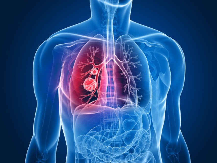 Causes and symptoms for Mesothelioma, how to treat and know that it is not a death sentence.