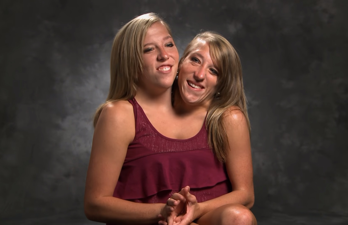 Abigail-and-Brittany-Hensel, are school teacher and are living their lives to the fullest even as conjoined twins