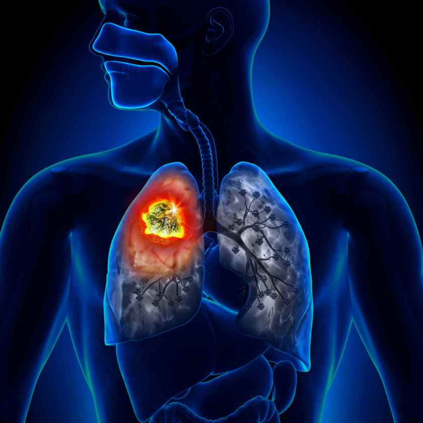 Pleura Mesothelioma is a tumor like cancer caused by asbestos